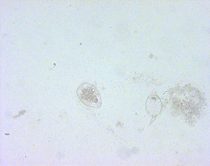 The structure on the left is a cyst-like structure of the rotifer (genus Philodina) pictured above. (The one on the right is another sort of rotifer, in genus Monostyla.)